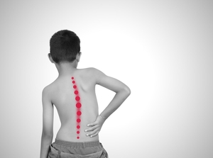 Scoliosis Treatment Manhattan | New York City (NYC)