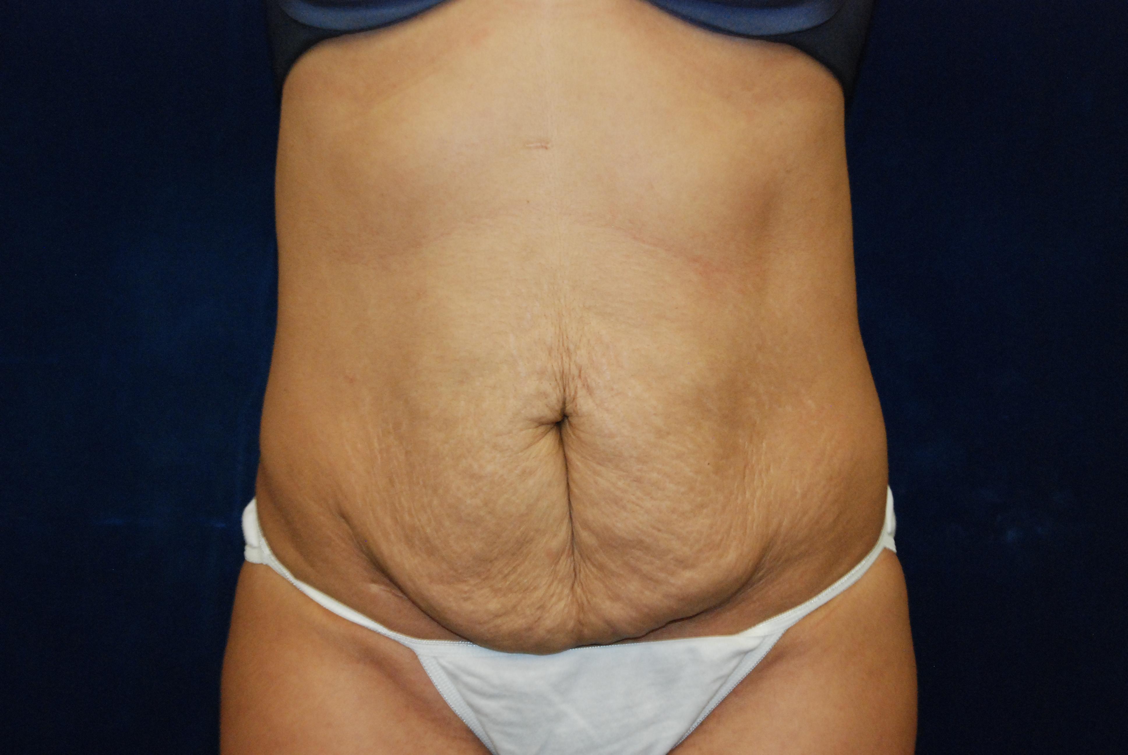 Eyelid Surgery ' Facelift ' Neck Lift ' Newton