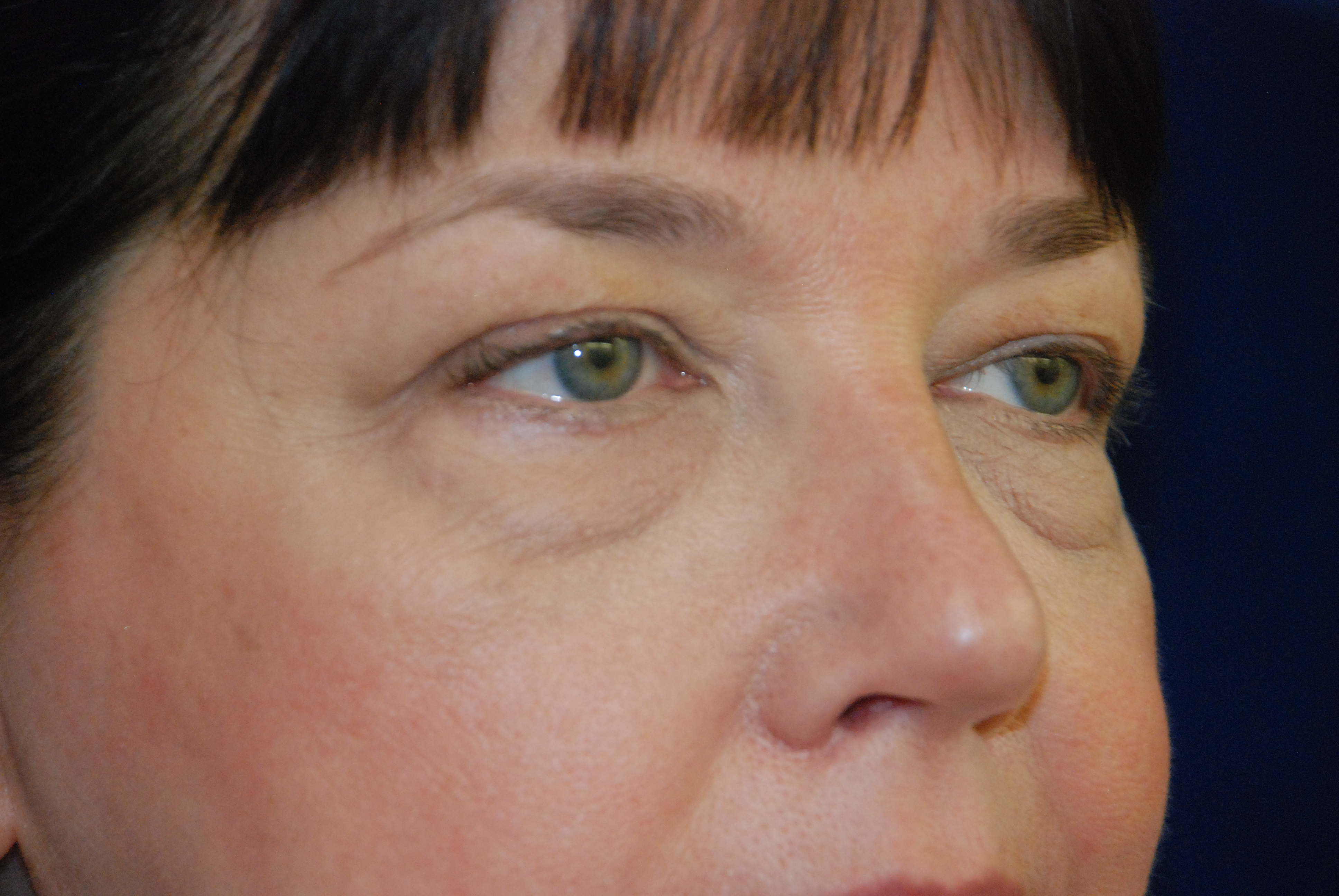 Eyelid Surgery ' Facelift ' Neck Lift ' Newton