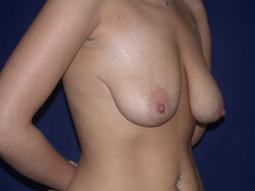 Breast Lift ' Newton