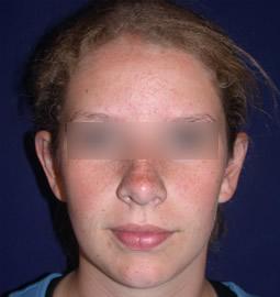 Otoplasty ' Ear Surgery ' Newton