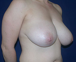 Breast Reduction ' Newton
