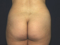 Breast Augmentation ' Newton